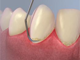 Gum Disease Treatment Gilbert AZ