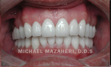 full-mouth-rehab-after