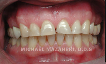 full-mouth-rehab-before
