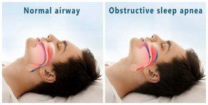 sleep apnea dentist, gilbert az
