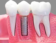 dental implants Gilbert AZ
