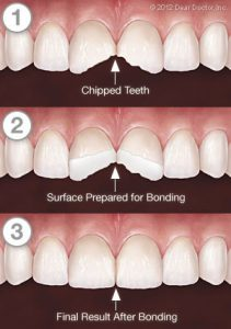 Dental Bonding In Gilbert AZ