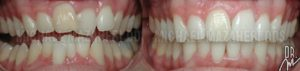 Invisalign Before and After Gilbert AZ