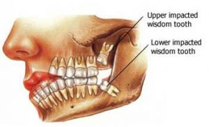 Wisdom Tooth Extraction in Gilbert, AZ